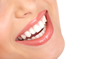 teeth whitening fort collins